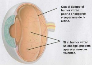 HumorVitreo