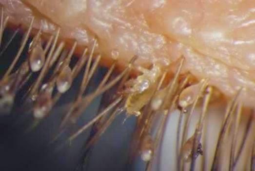 demodex, gusanos que viven en tu cara