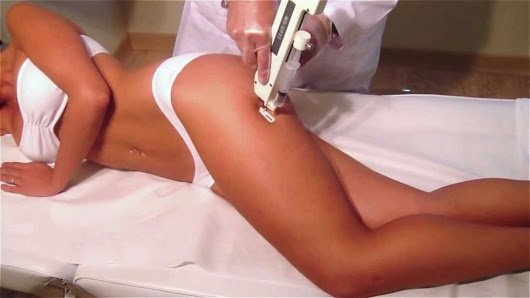 mesoterapia-17-003