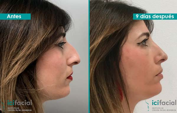 rinoplastia-ultrasonica-madrid-antes-despues