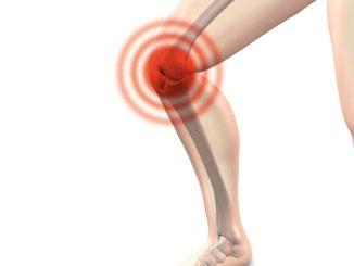 causas y sintomas artrosis